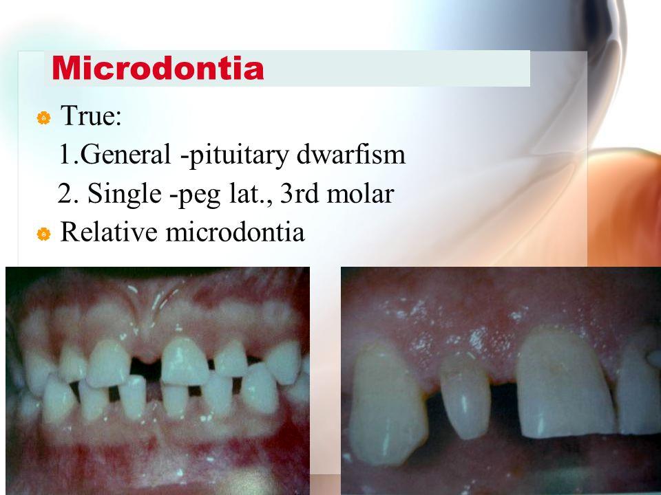 Microdontia True: 1.General -pituitary dwarfism
