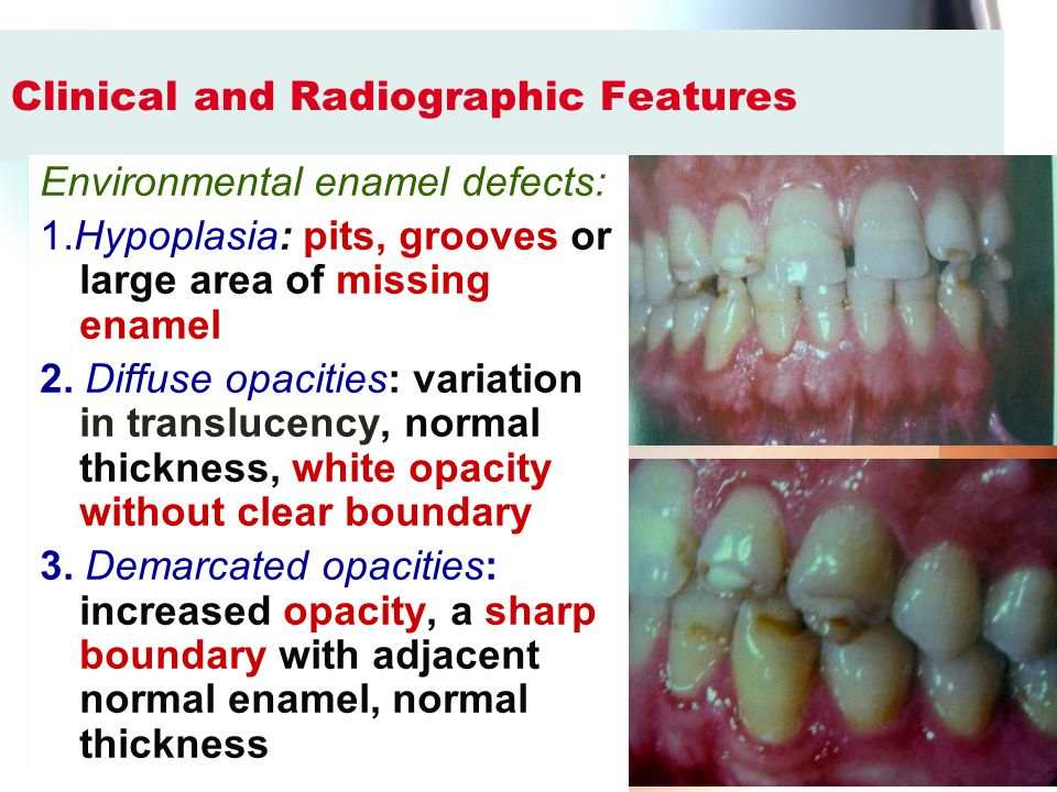 Clinical and Radiographic Features