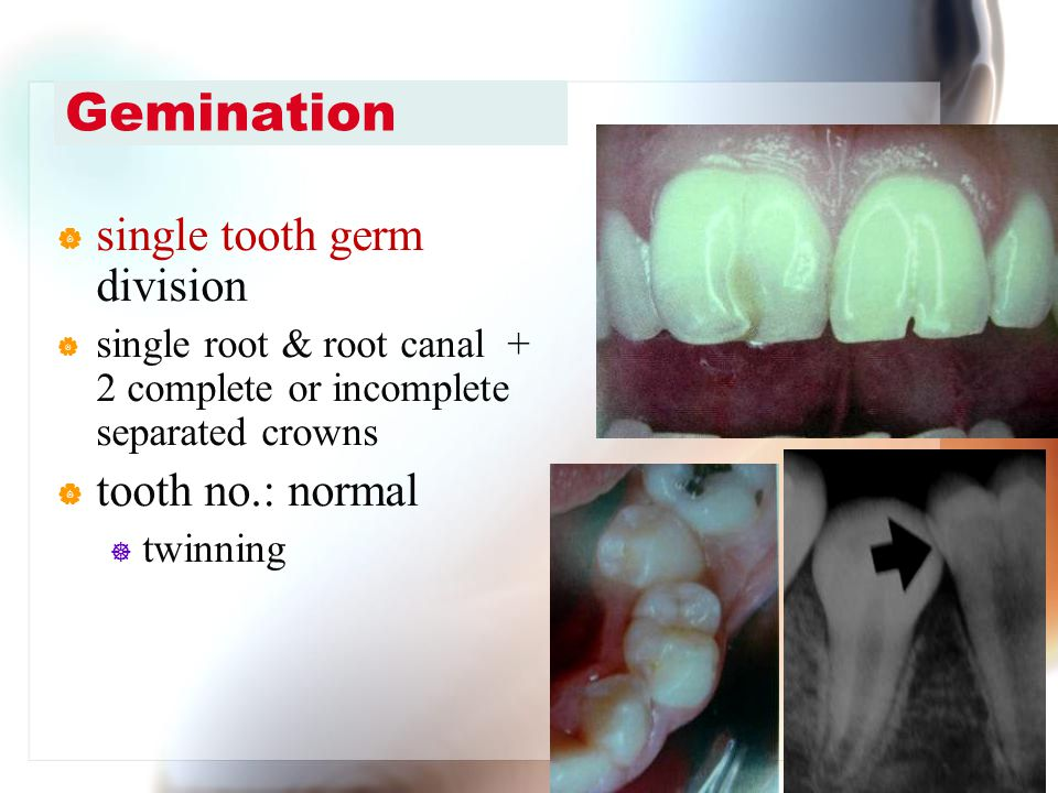 Gemination single tooth germ division tooth no.: normal