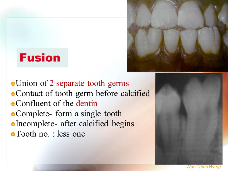 Fusion Union of 2 separate tooth germs