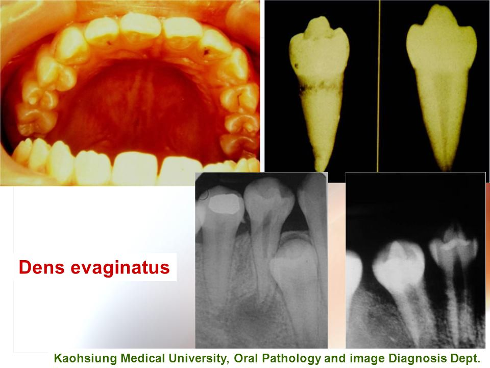 Dens evaginatus Kaohsiung Medical University, Oral Pathology and image Diagnosis Dept.