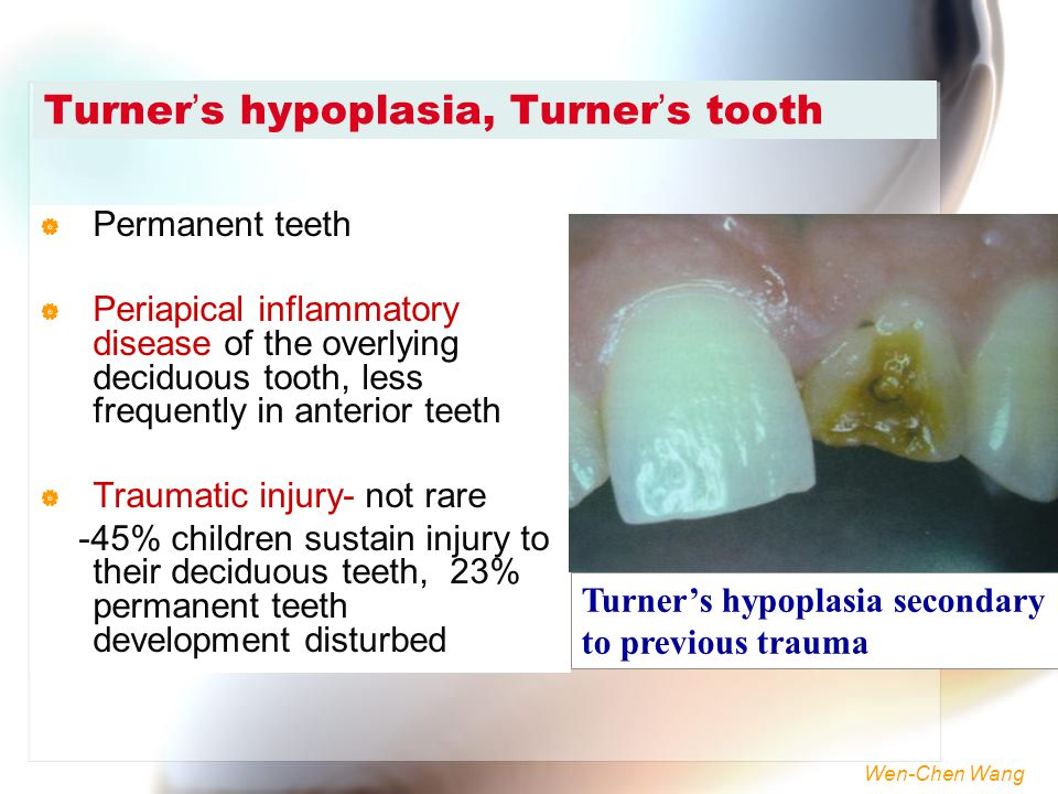 Turner's hypoplasia, Turner's tooth