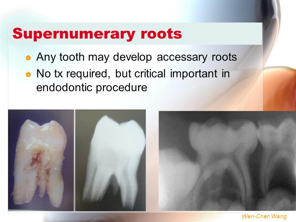 Supernumerary roots Any tooth may develop accessary roots
