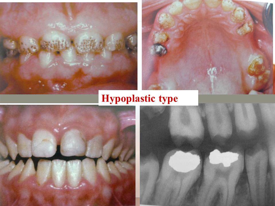 Hypoplastic type