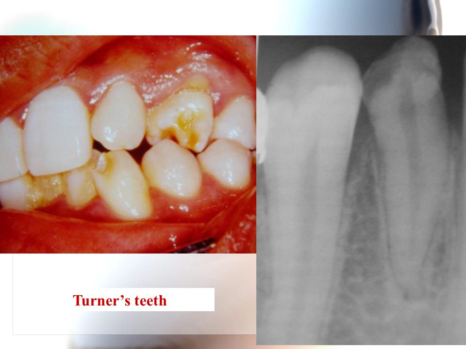 Turner's teeth