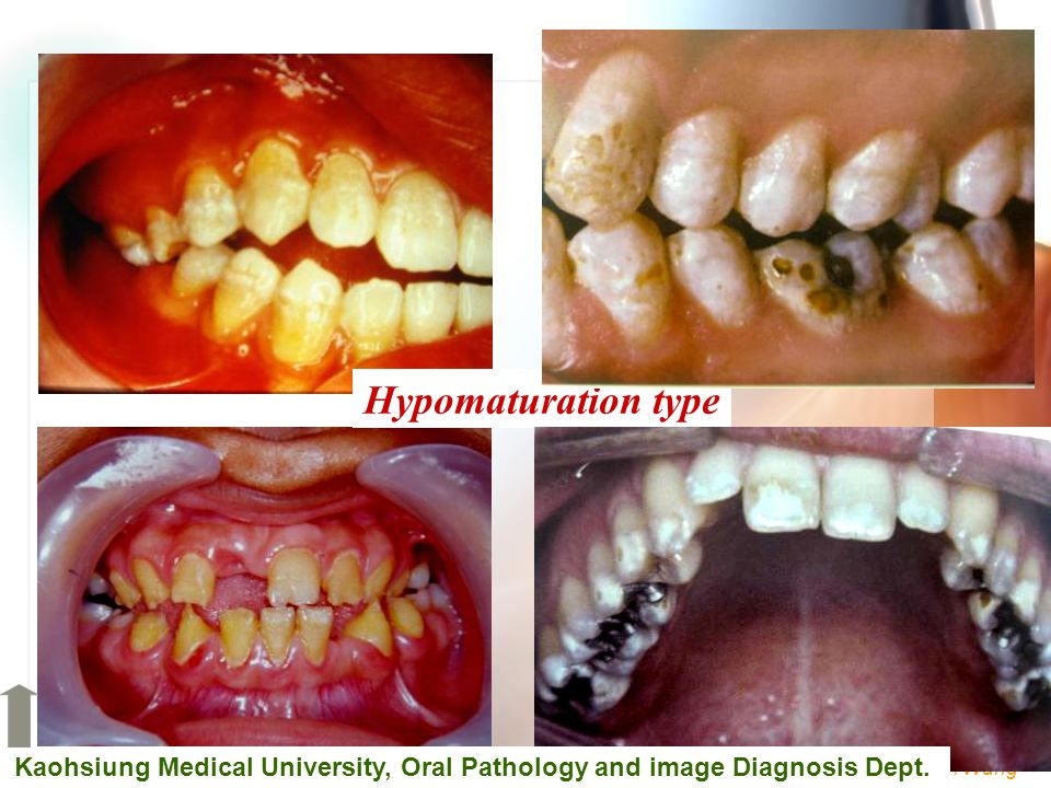 Hypomaturation type Kaohsiung Medical University, Oral Pathology and image Diagnosis Dept.