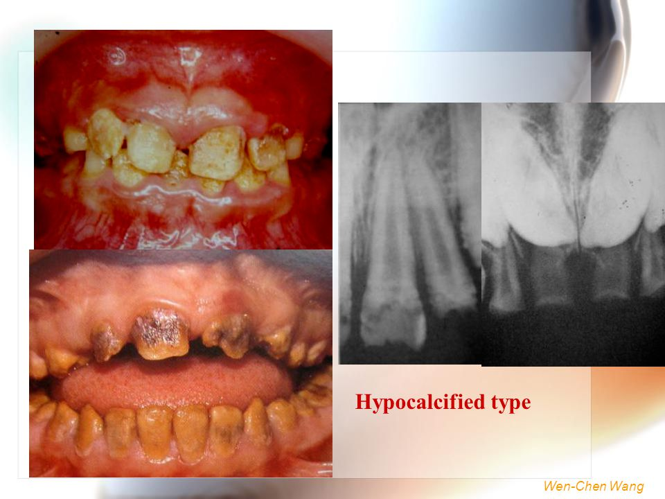 Hypocalcified type