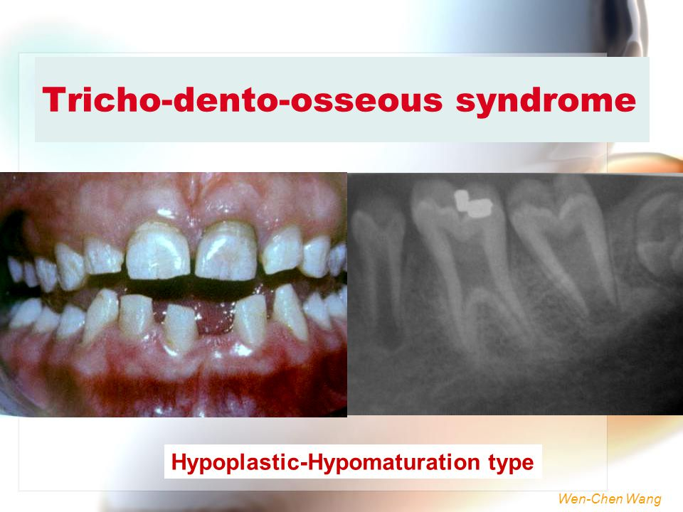 Tricho-dento-osseous syndrome