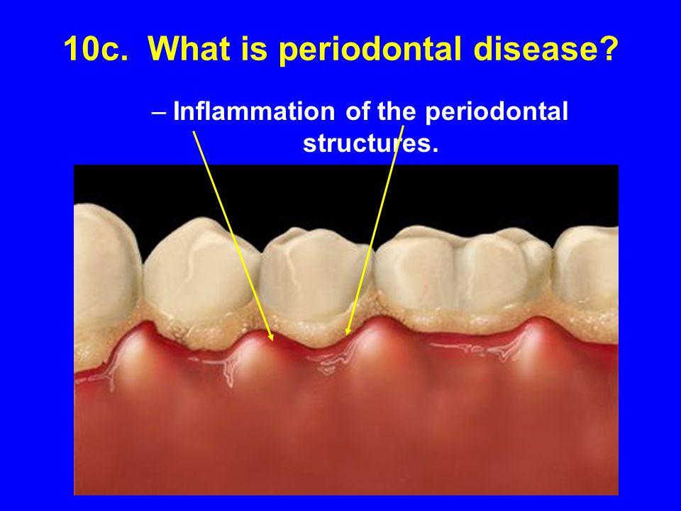 10c. What is periodontal disease