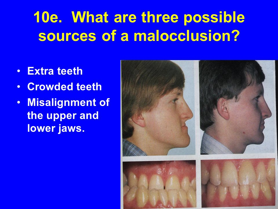 10e. What are three possible sources of a malocclusion