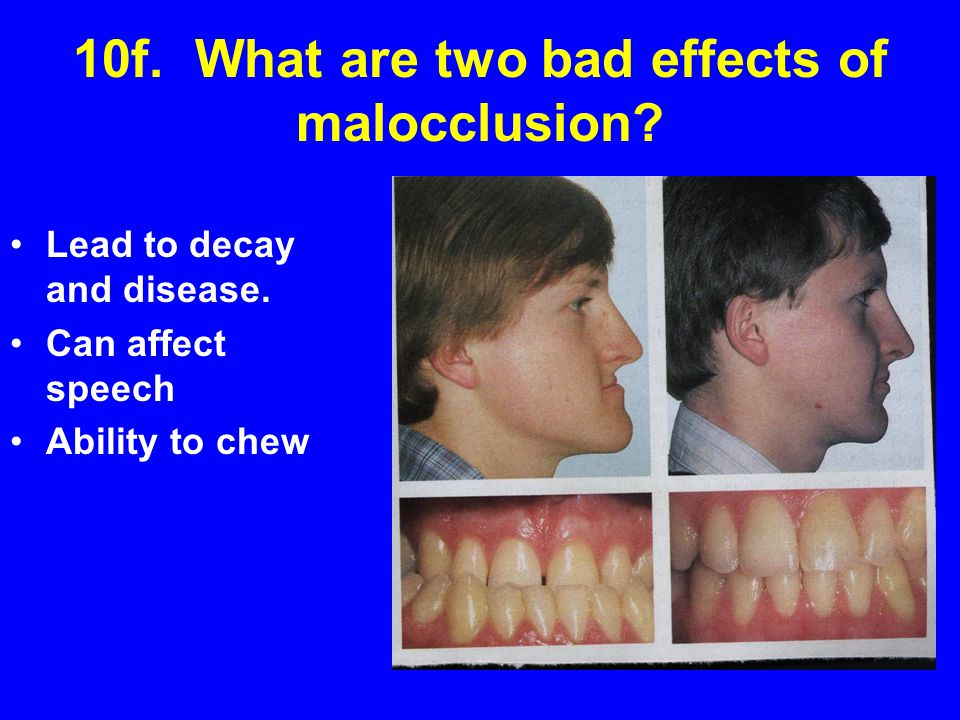 10f. What are two bad effects of malocclusion