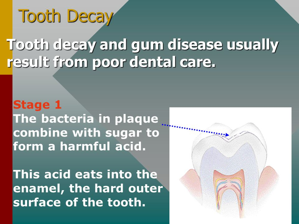 Tooth Decay Tooth decay and gum disease usually result from poor dental care. Stage 1.