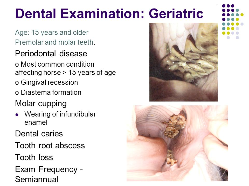 Dental Examination: Geriatric