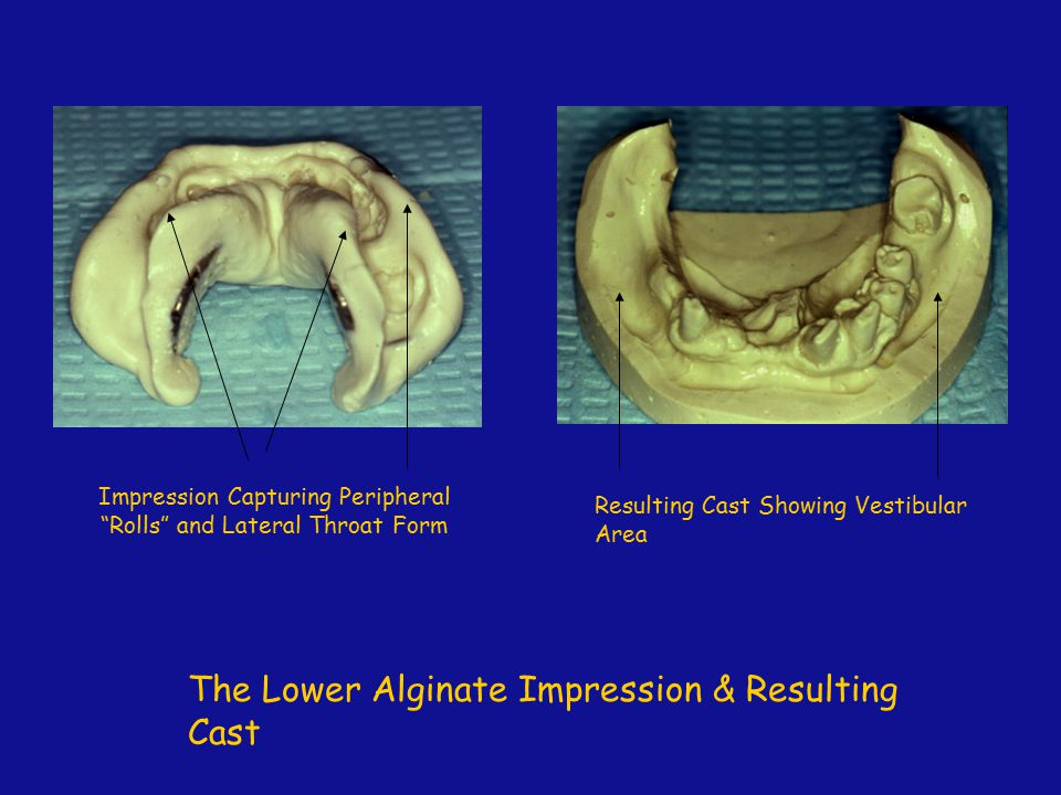 Impression Capturing Peripheral Rolls and Lateral Throat Form