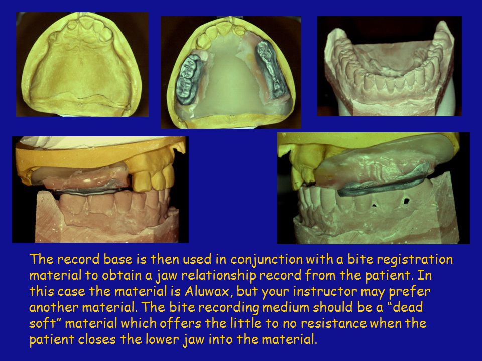 The record base is then used in conjunction with a bite registration material to obtain a jaw relationship record from the patient.