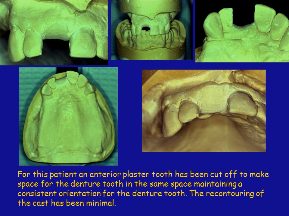 For this patient an anterior plaster tooth has been cut off to make space for the denture tooth in the same space maintaining a consistent orientation for the denture tooth.