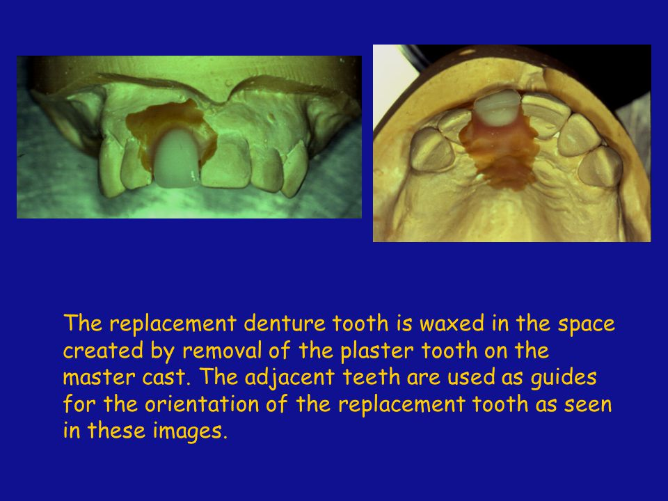 The replacement denture tooth is waxed in the space created by removal of the plaster tooth on the master cast.