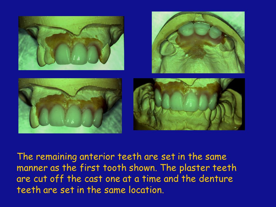 The remaining anterior teeth are set in the same manner as the first tooth shown.