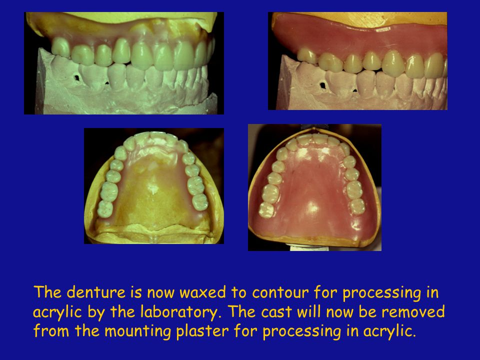 The denture is now waxed to contour for processing in acrylic by the laboratory.