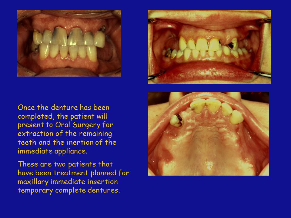 Once the denture has been completed, the patient will present to Oral Surgery for extraction of the remaining teeth and the inertion of the immediate appliance.