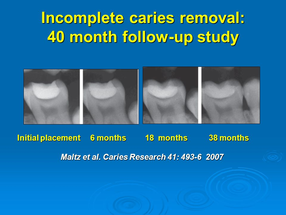 Incomplete caries removal: 40 month follow-up study
