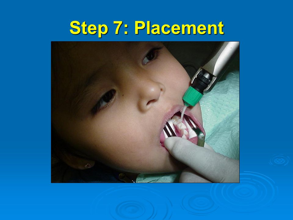Step 7: Placement Step 7 is to place glass ionomer material into the tooth.