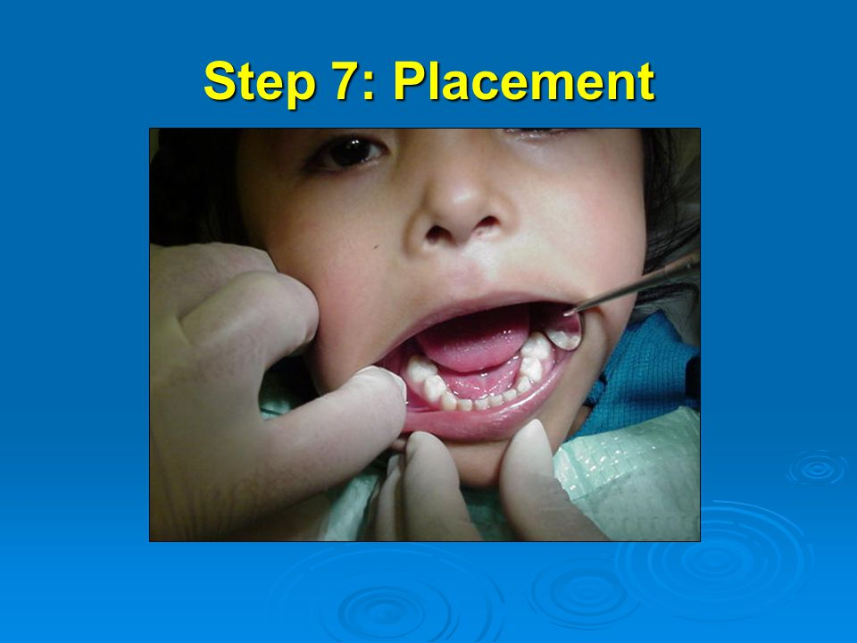 Step 7: Placement
