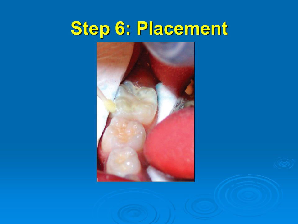 Step 6: Placement