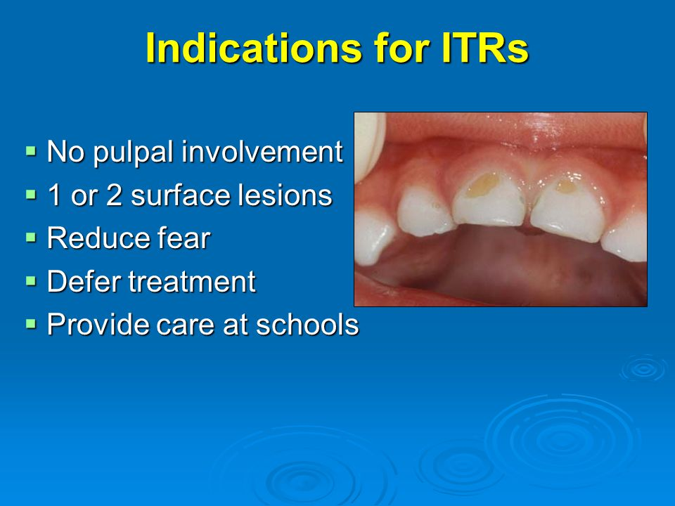 Indications for ITRs No pulpal involvement 1 or 2 surface lesions