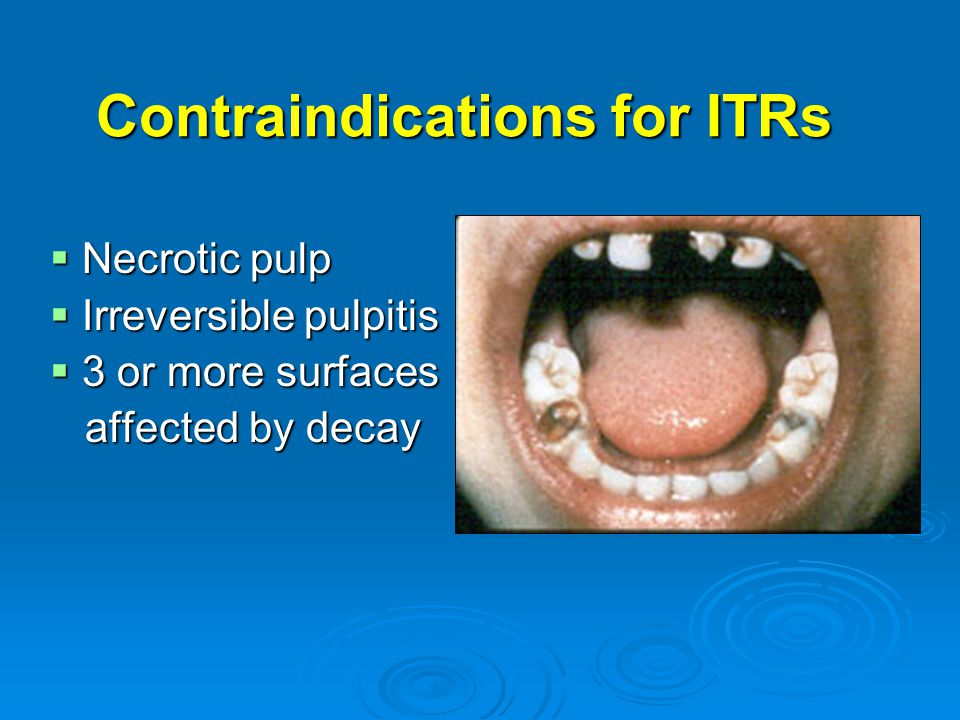 Contraindications for ITRs