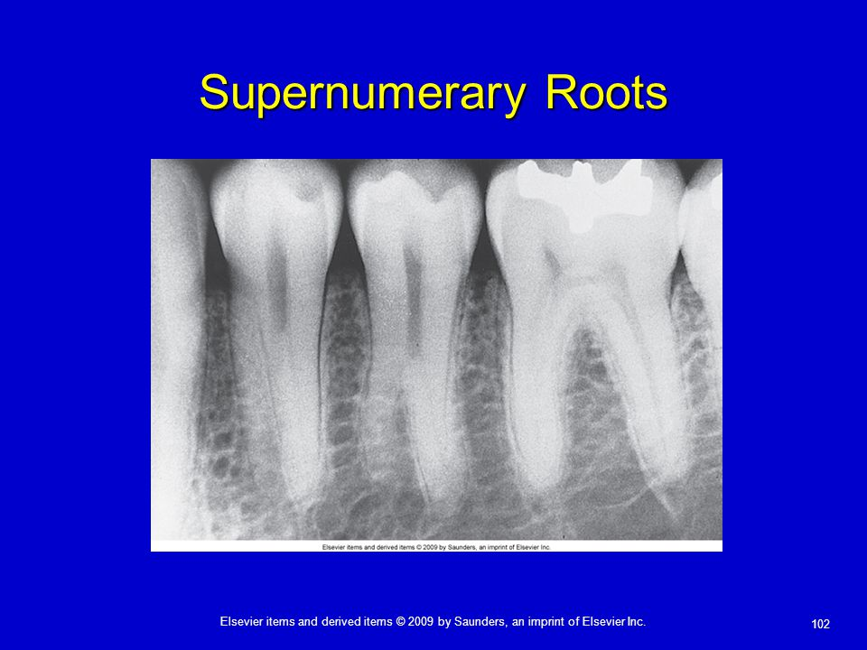 Supernumerary Roots