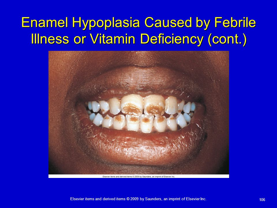Enamel Hypoplasia Caused by Febrile Illness or Vitamin Deficiency (cont.)
