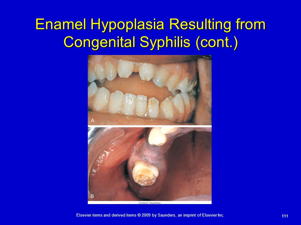 Enamel Hypoplasia Resulting from Congenital Syphilis (cont.)