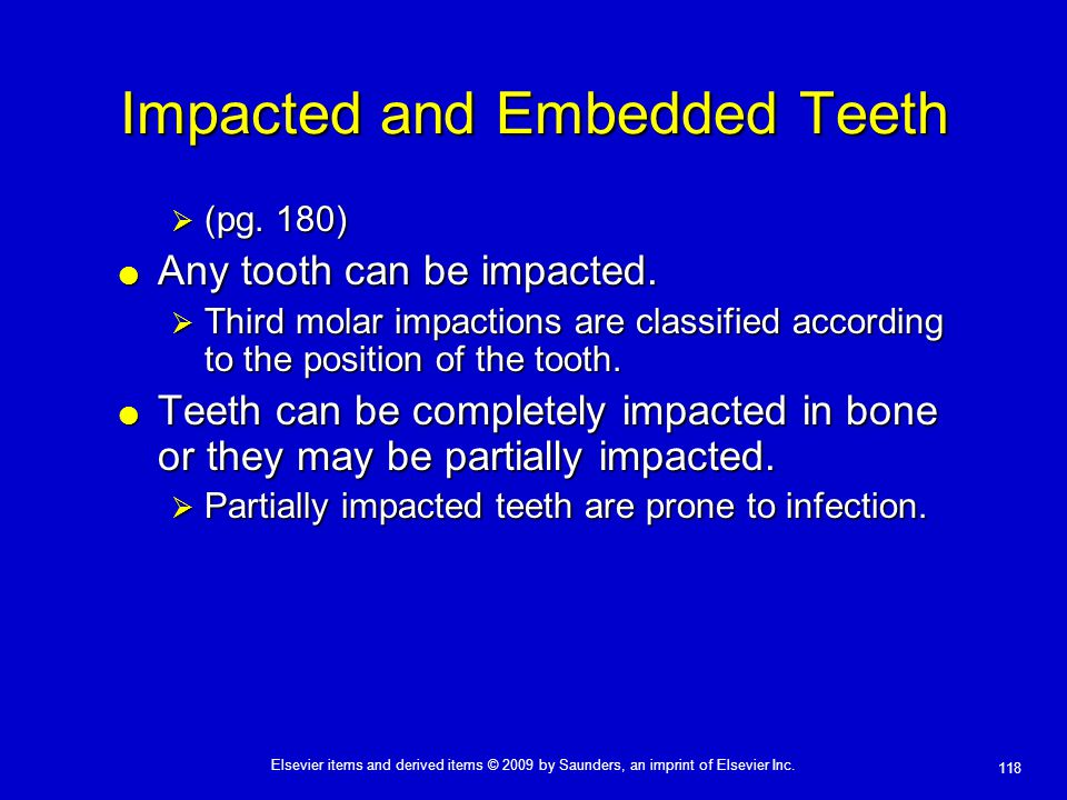 Impacted and Embedded Teeth