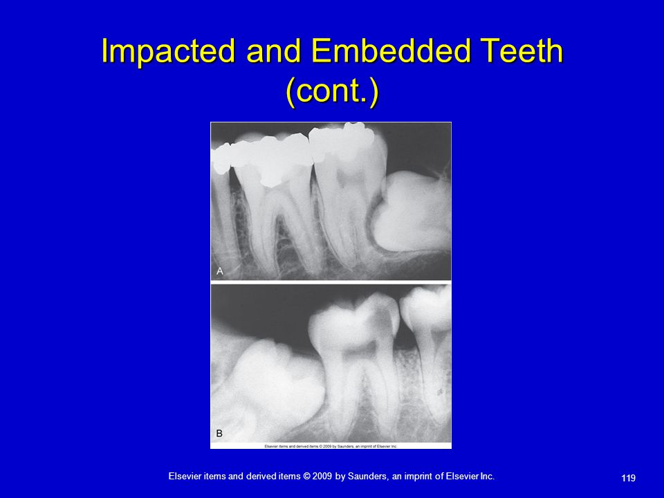 Impacted and Embedded Teeth (cont.)