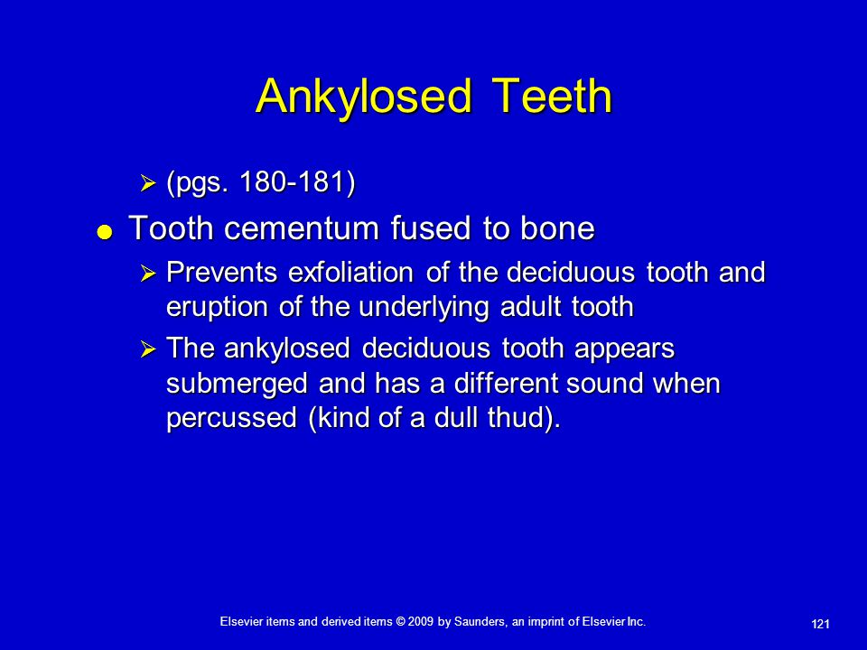 Ankylosed Teeth Tooth cementum fused to bone (pgs. 180-181)