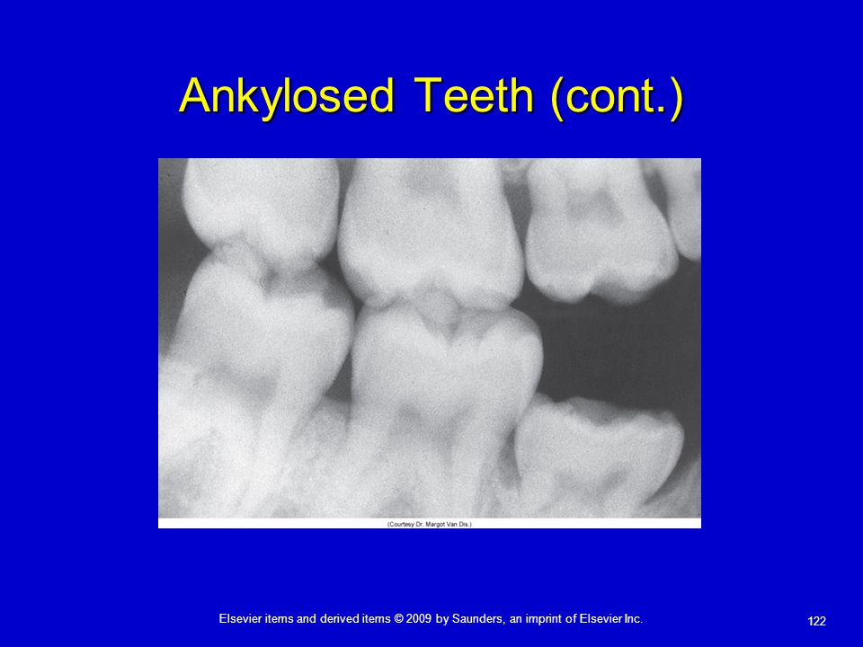 Ankylosed Teeth (cont.)