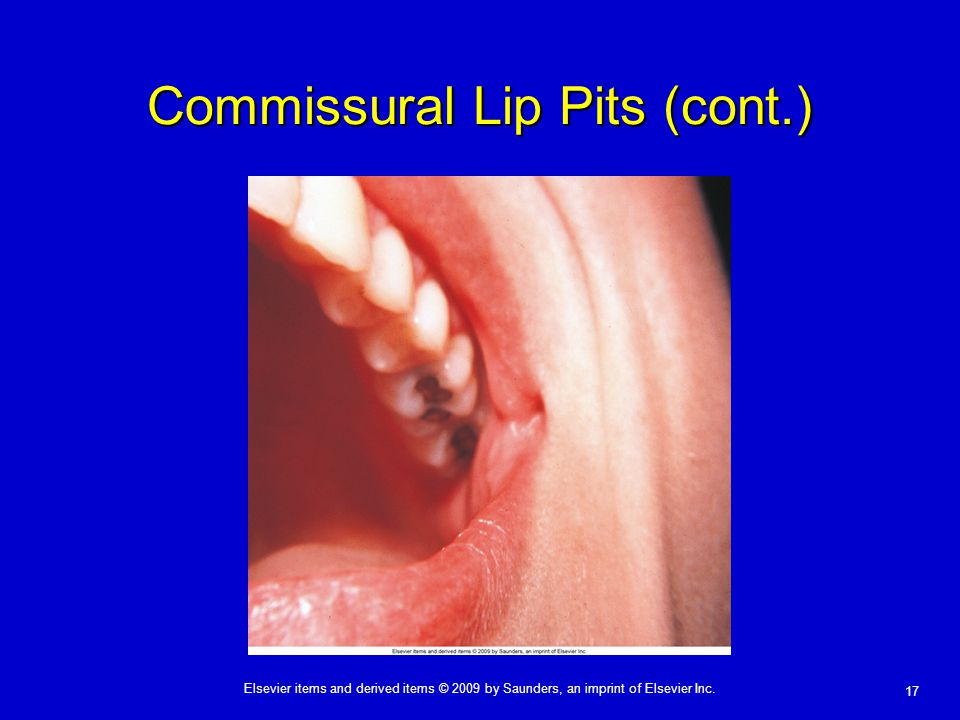 Commissural Lip Pits (cont.)