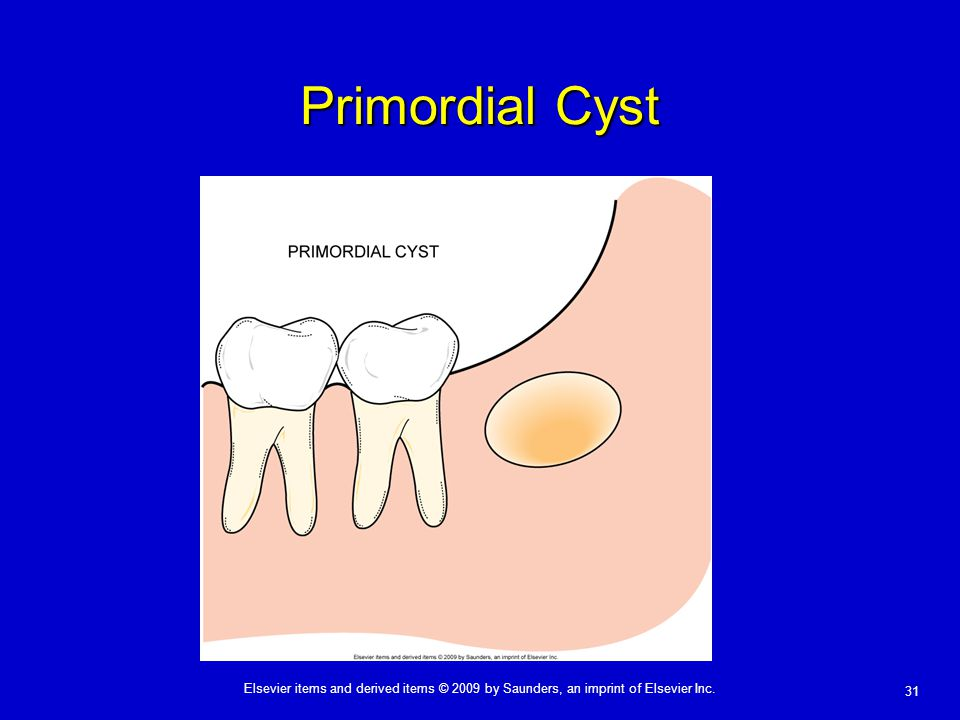 Primordial Cyst