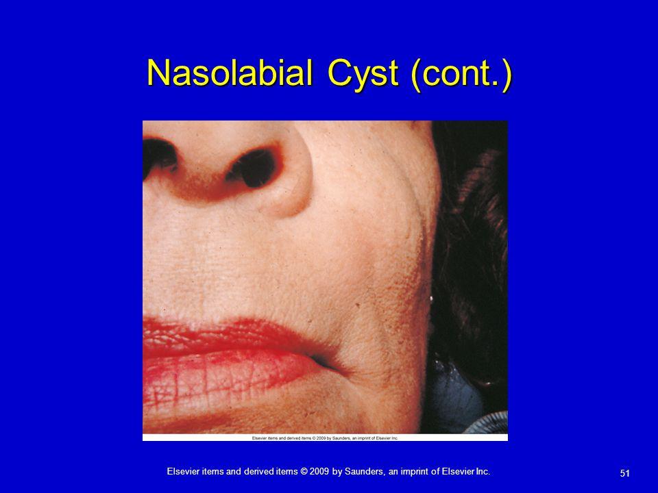 Nasolabial Cyst (cont.)