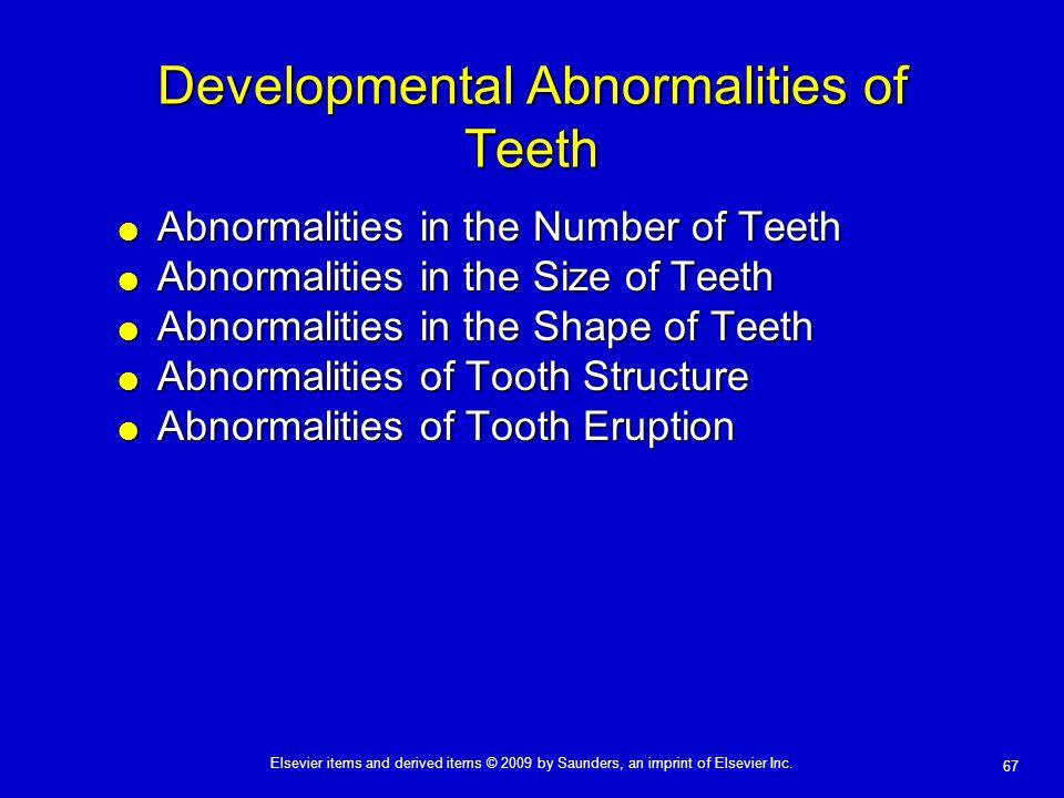 Developmental Abnormalities of Teeth
