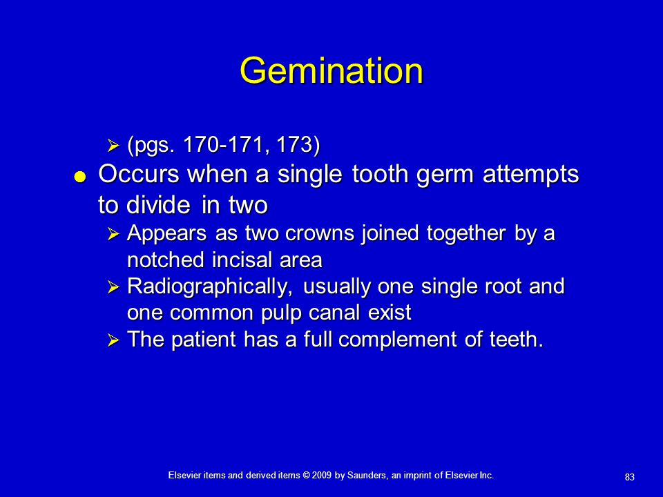 Gemination Occurs when a single tooth germ attempts to divide in two