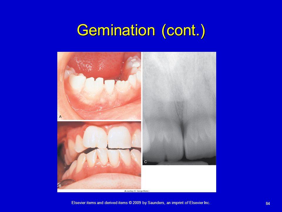 Gemination (cont.)