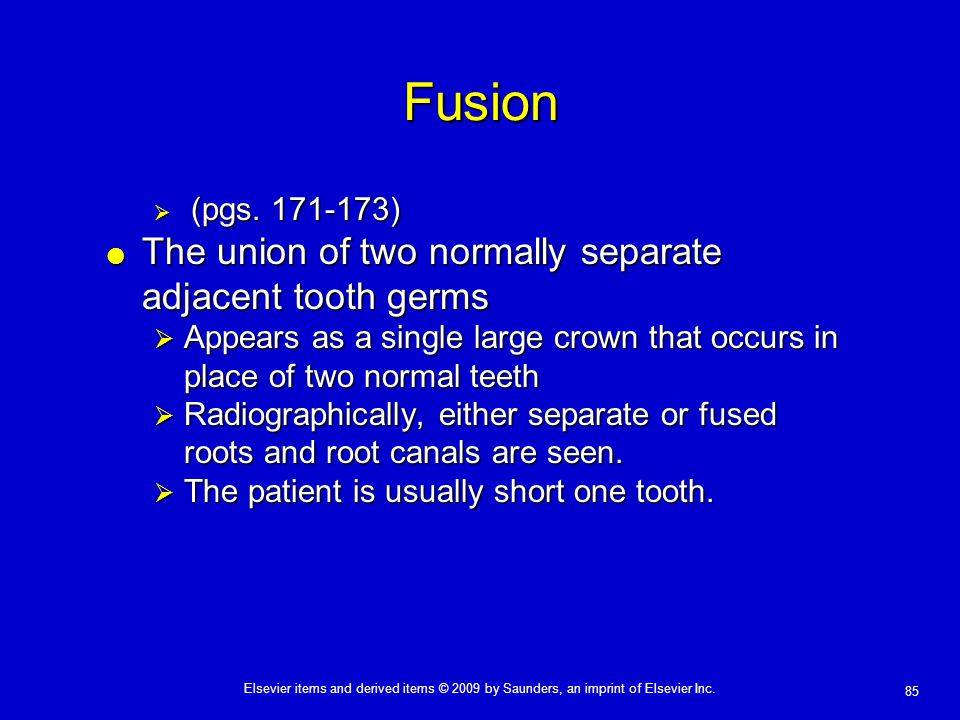 Fusion The union of two normally separate adjacent tooth germs