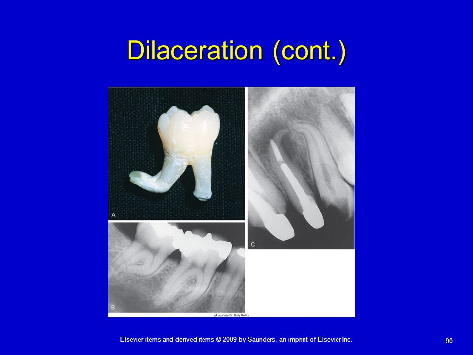 Dilaceration (cont.)