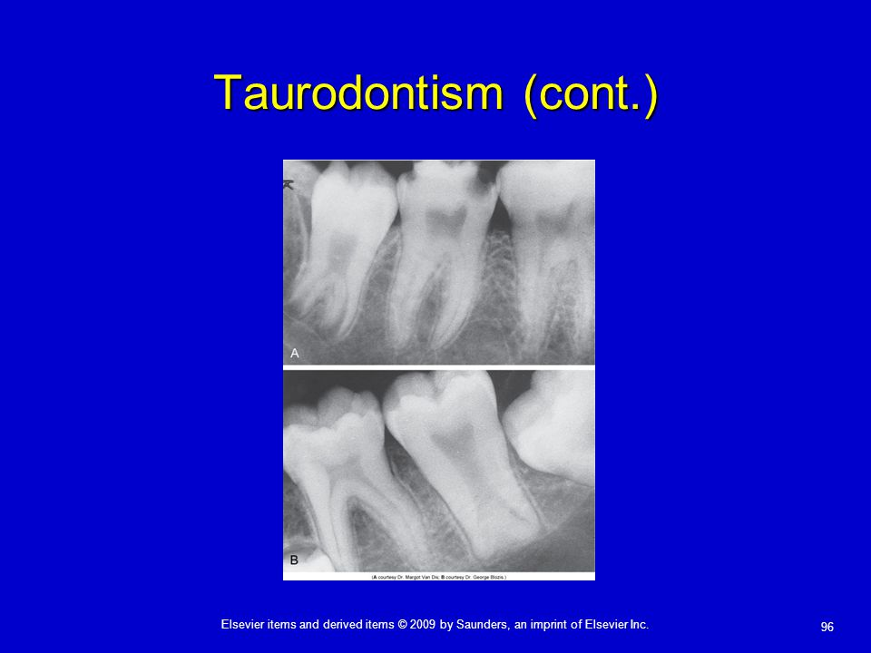 Taurodontism (cont.)