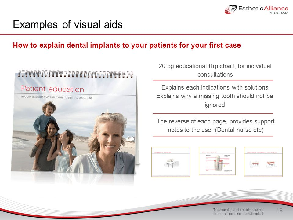 Examples of visual aids