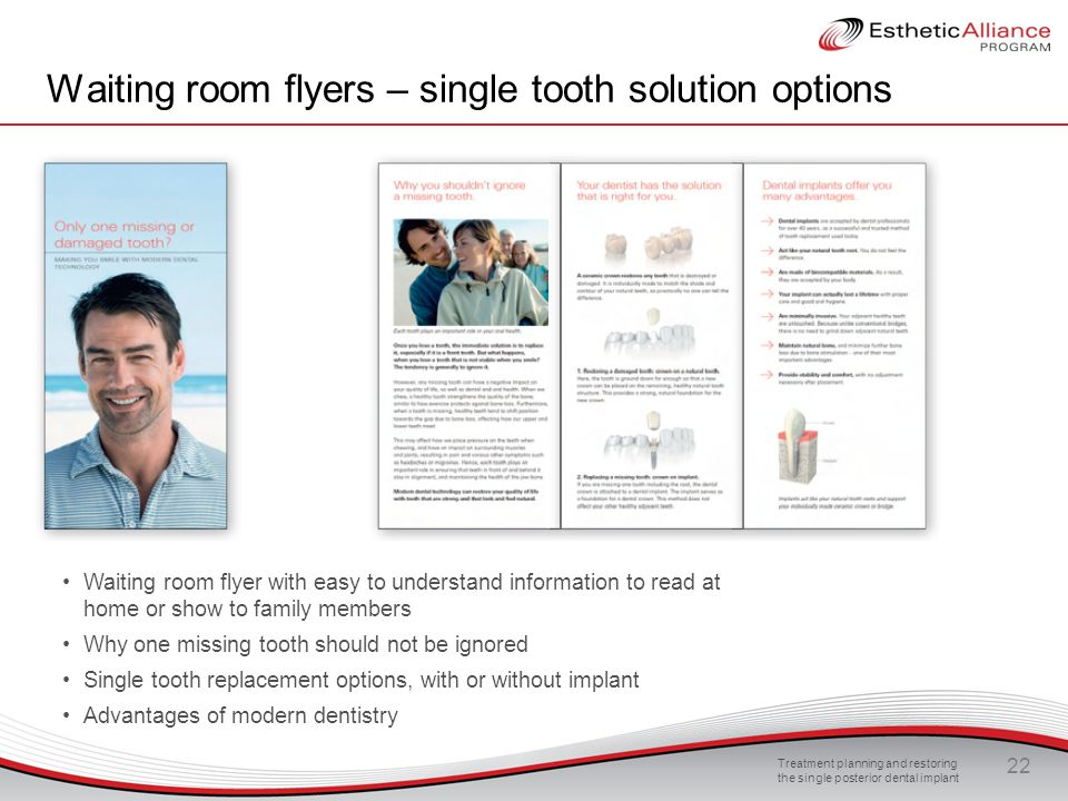 Waiting room flyers – single tooth solution options