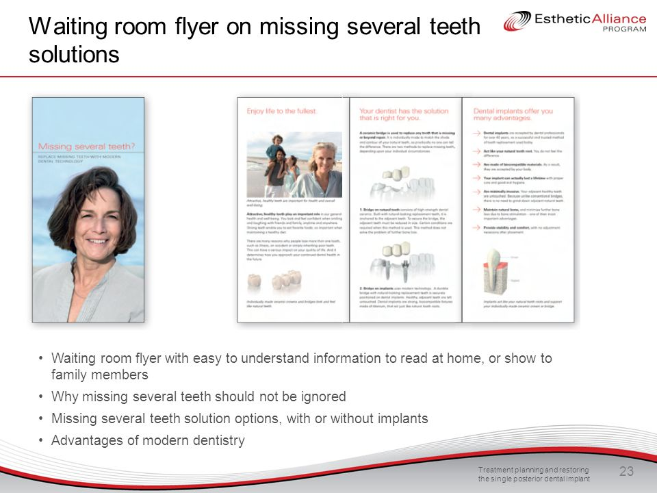 Waiting room flyer on missing several teeth solutions