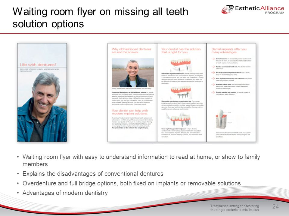 Waiting room flyer on missing all teeth solution options